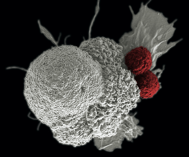 T cells (red) attack an oral squamous cancer cell (white). Image created by Rita Elena Serda. (Image by National Cancer Institute/Duncan Comprehensive Cancer Center at Baylor College of Medicine.)
