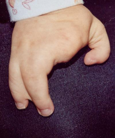 split hand/foot malformation