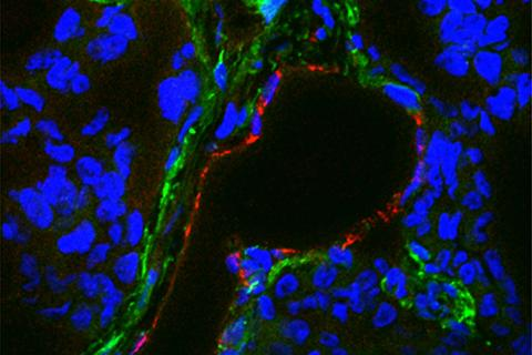 Immunofluorescence image of TEM8 in TNBC cells